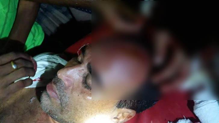 রাঙ্গাবালীতে দু'পক্ষের সংঘর্ষে যুবলীগ নেতাসহ আহত ৫
