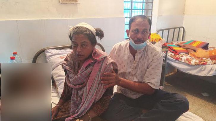 অভয়নগরে মানসিক ভারসাম্যহীন নারীকে কুপিয়ে জখম