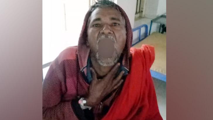 ১০০ টাকার বাজিতে গরম চা গিলে হাসপাতালে যুবক