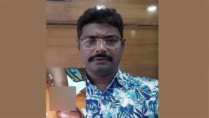 পটুয়াখালীতে ব্যবসায়ীর পায়ের রগ কর্তন